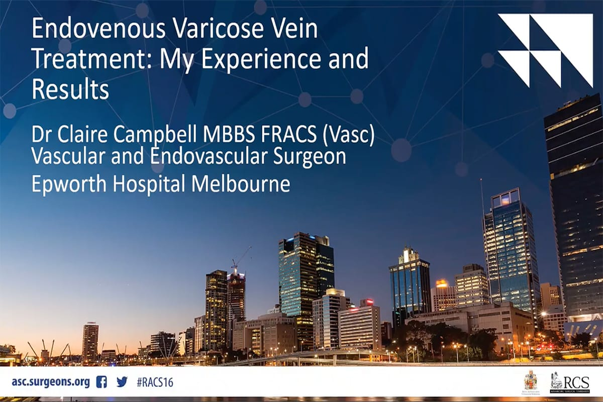 Presentation - Endovenous Varicose Vein Treatment - Experience and Results